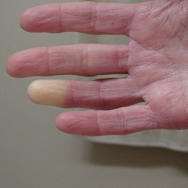 fenomeno-di-Raynaud-associazione-scientifica-fibromialgia